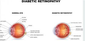 What is the first stage of diabetic retinopathy